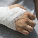Wrist sprain of the soft tissue