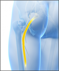 Sciatica - piriformis syndrome treatment