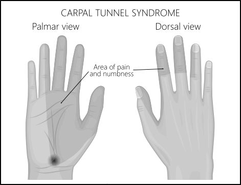 Pain and numbness felt in the hand with Carpal Tunnel Syndrome